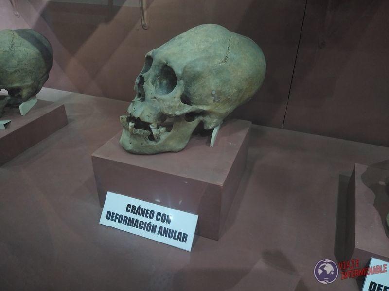 Craneo deforme Museo Oruro